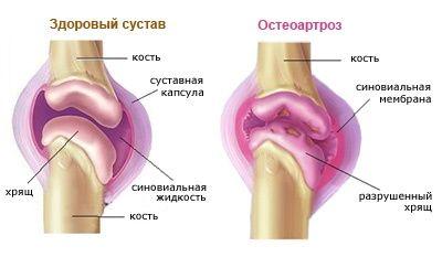 Деформирующий остеоартроз — серьезное заболевание