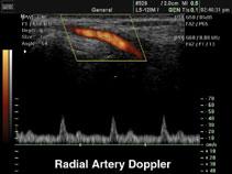 Лучевая артерия, энергетический и импульсный допплер