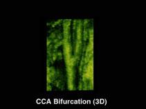 Общая сонная артерия, бифуркация, 3D