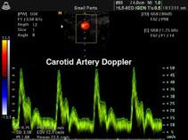 Общая сонная артерия, импульсный допплер