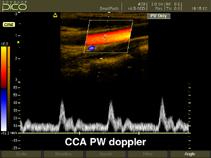 Общая сонная артерия, цветное картирование и импульсный допплер