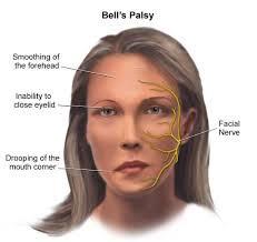 Неврит лицевого нерва, паралич Бела
