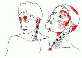 Миофасциальный болевой синдром /МФБС/