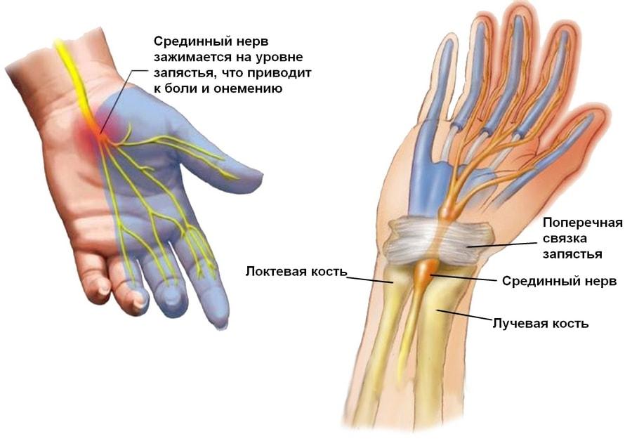 Компресійно-ішемічна невропатія   /КІН