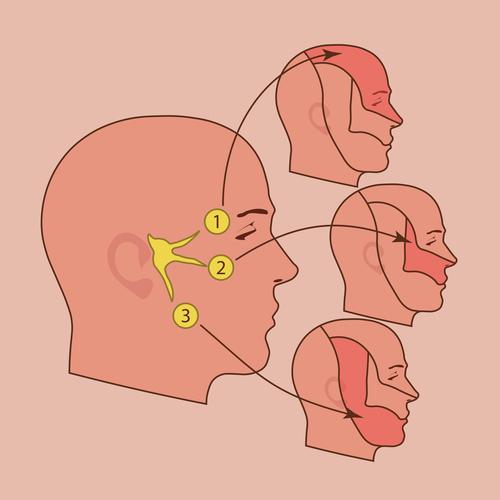 Трігемінальна невропатія