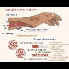 Компрессионно-ишемическая  невропатия  /КИН
