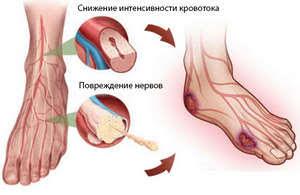 Полінейропатія