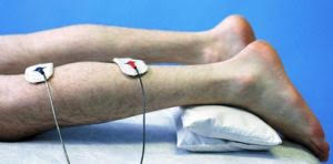 Акупуктура и рефлексотерапия в неврологии