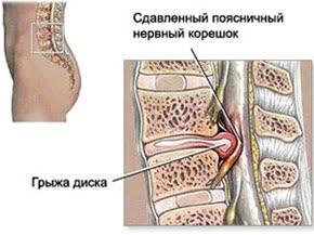 Правильное лечение межпозвонковых (межпозвоночных) грыж