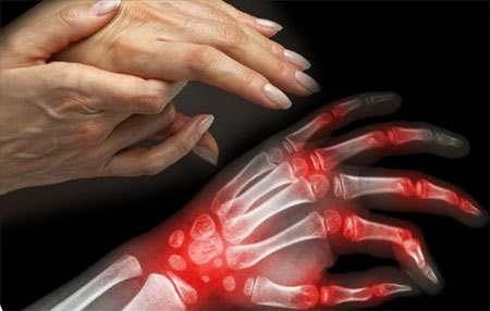 Пациентка с ревматоидным артритом
