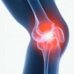 Пацієнтка з діагнозом деформуючий остеоартроз колінних суглобів 2 ступеню