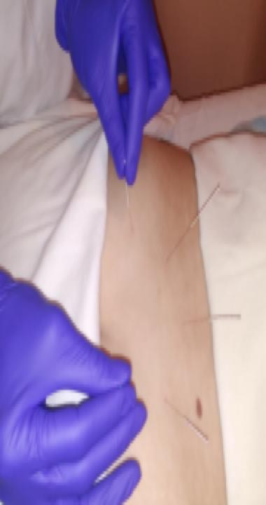 Люмбалгія, люмбоішіалгія