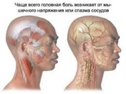 Головний біль – досвід лікування методами  рефлексотерапії