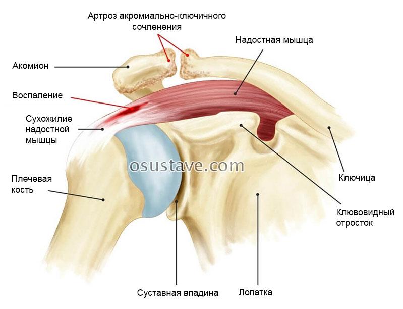 Лікування хвороб плечового суглоба, реабілітація після травм та операцій в ділянці плечового суглоба
