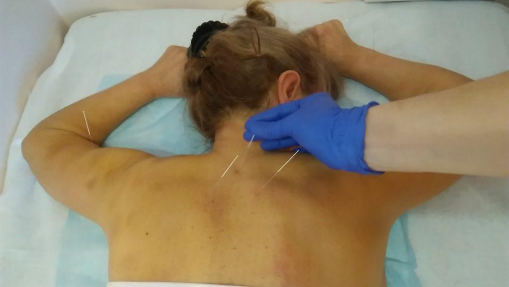 Акупунктура та рефлексотерапія у лікуванні захворювань внутрішніх органів і систем