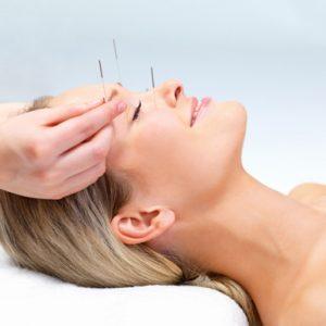 Вегетосудинна  дистонія (ВСД) – досвід лікування методами Рефлексотерапії