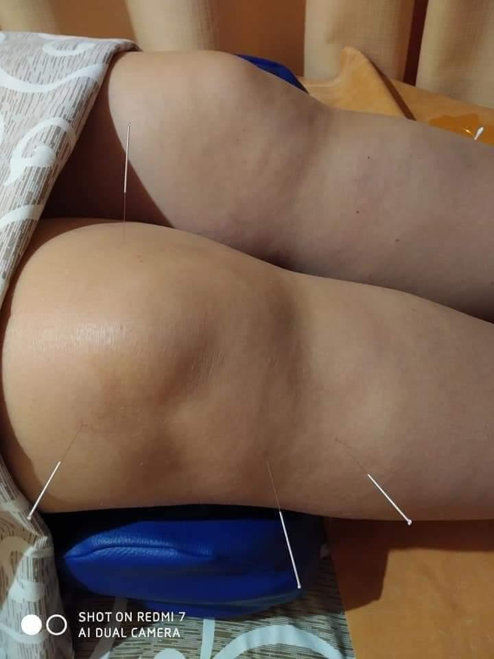 Акупкунктура ,Рефлексотерапія при захворюваннях периферичної нервової системи