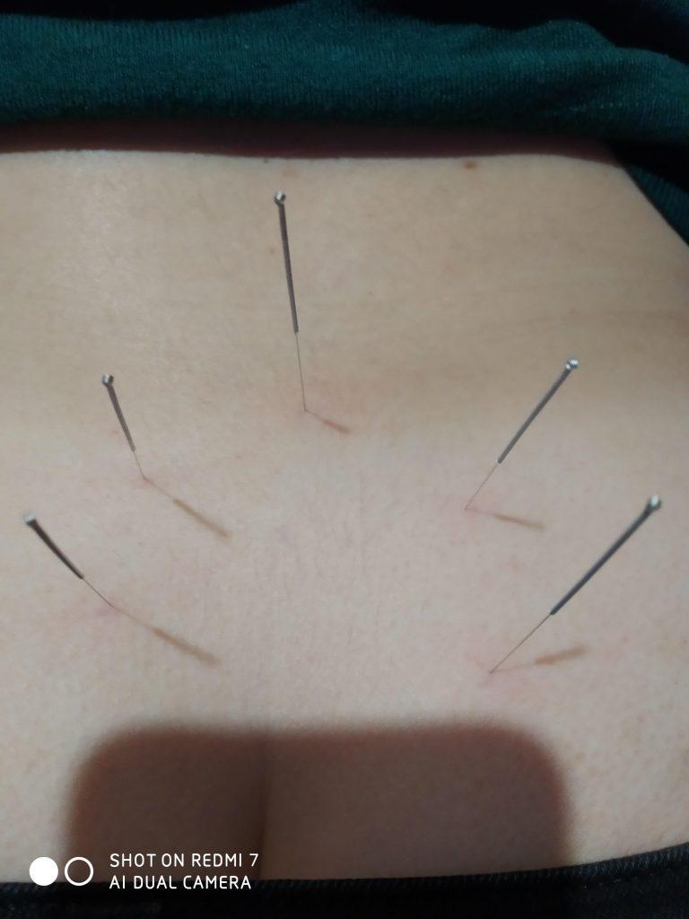 Акупунктура і Рефлексотерапія у лікуванні захворювань центральної нервової системи