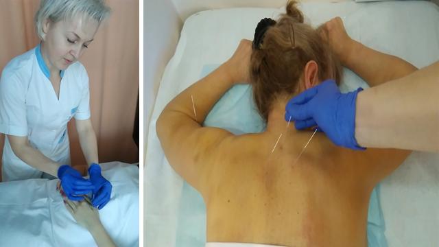 Цервікалгія, цервікобрахіалгія – біль в шиї та руці. Чому потрібна консультація невролога!
